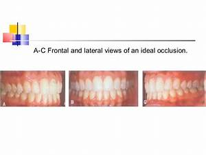 Terminology In Orthodontics