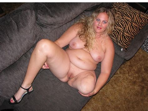 Jpg In Gallery Brave Amputee BBW Girl Showing