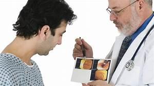 Геморрой симптомы на ранних стадиях