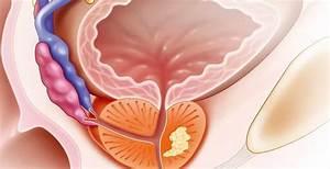 Аденома предстательной железы симптомы и лечение и диета