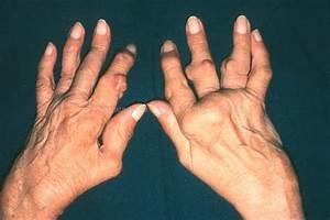 Мазь при болях в суставе большого пальца ноги