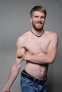 Biceps Brachii Muscle Pain  U0026 Trigger Points