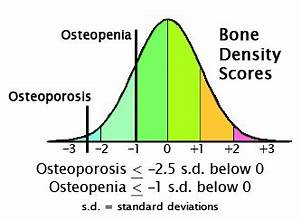Bone Density Z Score Chart The Infamous T Score And Neglected Z Score