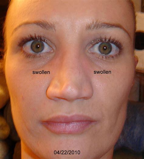Swollen Nose Gallery