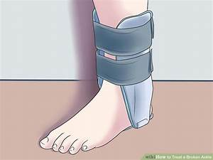How To Treat A Broken Ankle  With Pictures