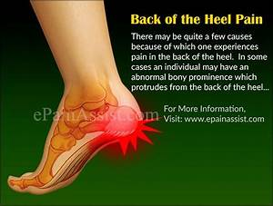 7 Best Foot Pain Causes  Treatment  Images On Pinterest