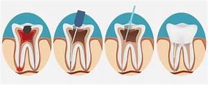 Rage De Dents Que Faire : d vitaliser une dent peut faire mal v rifiez la r ponse ici zonedentaire ~ Maxctalentgroup.com Avis de Voitures