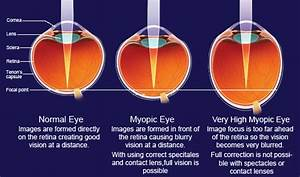 Treatment for Low Myopia India | Eye Care Specialist ...