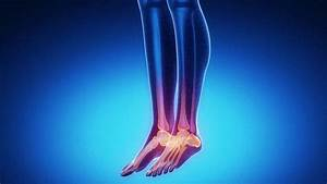 Crps And Rsd Symptoms  Causes  Treatments Surgery And