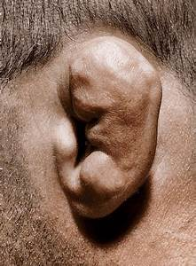 Cauliflower Ear – Causes, Pictures, Draining and Treatment