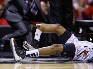 Sports Injuries and Stories: Kevin Ware's Open Fracture