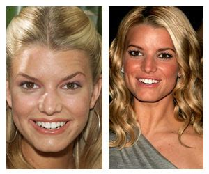 funny picture  video jessica simpson plastic surgery