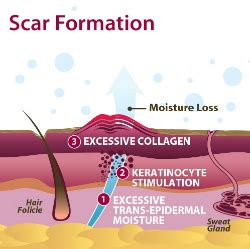 acne scars     rid  red acne