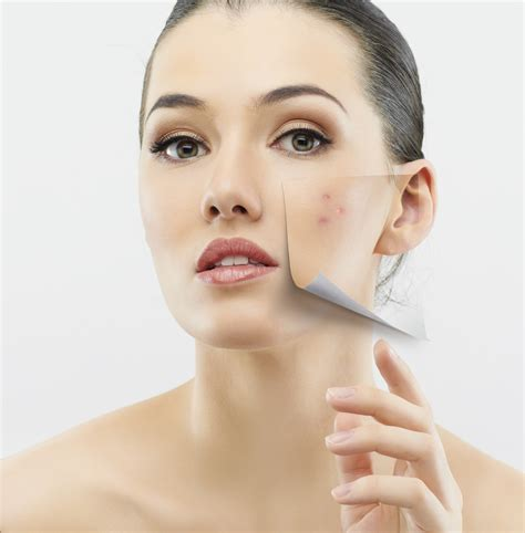 Laser And Light Treatment For Adult Acne  Clear Clinic