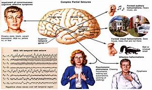 Partial Seizure - Pictures, posters, news and videos on ...