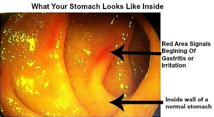 alcoholic gastritis  symptoms diagnosis