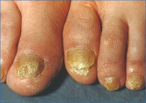 Comment soigner la mycose des ongles?
