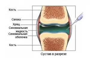 Лечение остеохондроза доска евминова