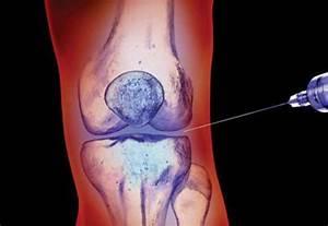 Лечение артрита гормональными препаратами