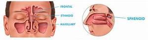 Common Sinus Problems