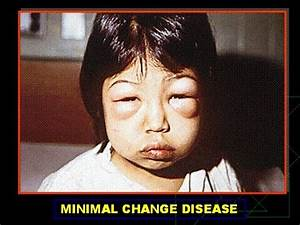 Minimal Change Disease - YouTube