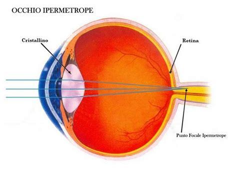 ipermetropia occhiali da vista  lenti delle migliori marche