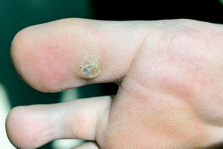 planters wart on toe plantar warts can cause foot fit for