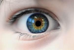 Central heterochromia | Heterochromia | Pinterest