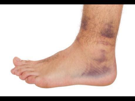struggling  swollen ankles lifestyle jamaica star