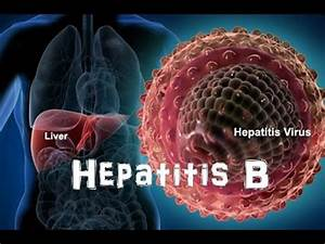 Hepatitis B - Y... Hepatitis B
