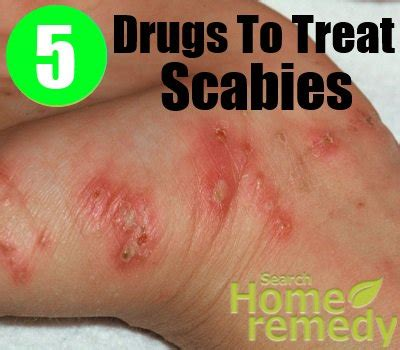 5 Drugs And Medications To Treat Scabies  How To Treat. Business Cards Transparent Steak Out Delivery. How To Get A Business Incorporated. Top 3 Credit Report Companies. Safest Online Shopping Sites U Haul Albany. Biggest Trucks In The World Crowley Law Firm. Customer Resource Management System. North Carolina Personal Loans. Rolls Royce Convertible Price