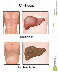 Liver Disease Belly