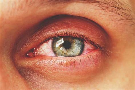 thyroid eye disease mydrcomau