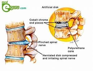 Lumbar Thoracic Cervical Spine