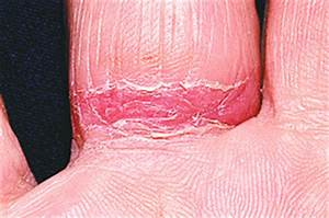 wedding ring dermatitis article by wall street journal With wedding ring dermatitis
