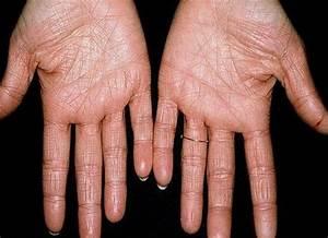 Лечение грибка ногтей лазером в нижнем новгороде отзывы