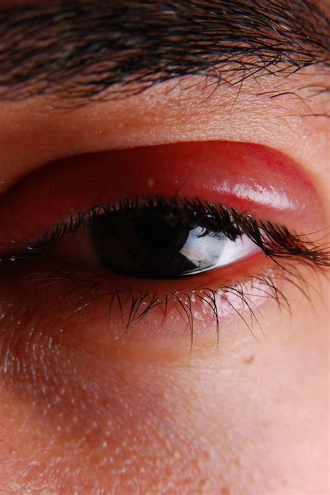 shingles   eye symptoms treatment  prevention