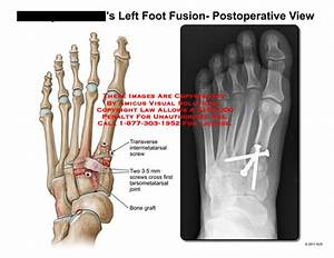 Amicus Illustration Of Amicus Surgery Foot Fusion