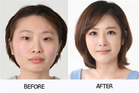 Korean Plastic Surgery Meme - k pop kimchi and plastic surgery news resources medtrip