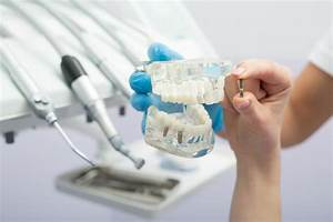 A Simple Guide To Taking Care Of Your Dental Implants