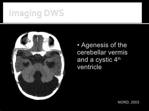 dandy walker ct syndrome agenesis vermis cerebellar