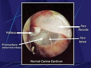 Examination of the Ear | Clinician's Brief