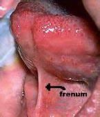 Lingual frenum; Frenum, Lingual
