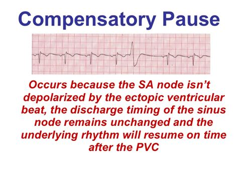 Node Js Pause Resume by Ventricular Rhythms Bmh Tele