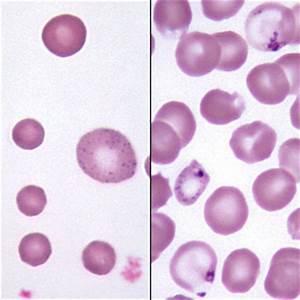 Somatocyte : définition de SOMATOCYTE , , subst. masc.