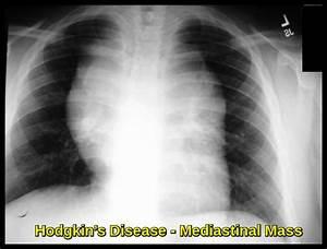 Hodgkin's Disease - Ask Hematologist - Understand Hematology Hodgkin's Disease
