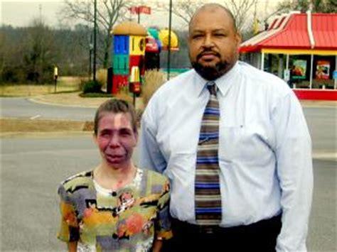 eeoc sues mcdonalds restaurant  disability bias