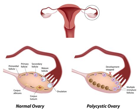 What You Should Know About Pcos