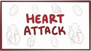 Heart Attack  Acute Myocardial Infarction