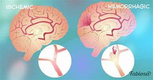 Cerebrovascular Disease  4 Main Types  And A Few Tips To